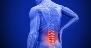 أسباب وأعراض إلتهاب الأعصاب